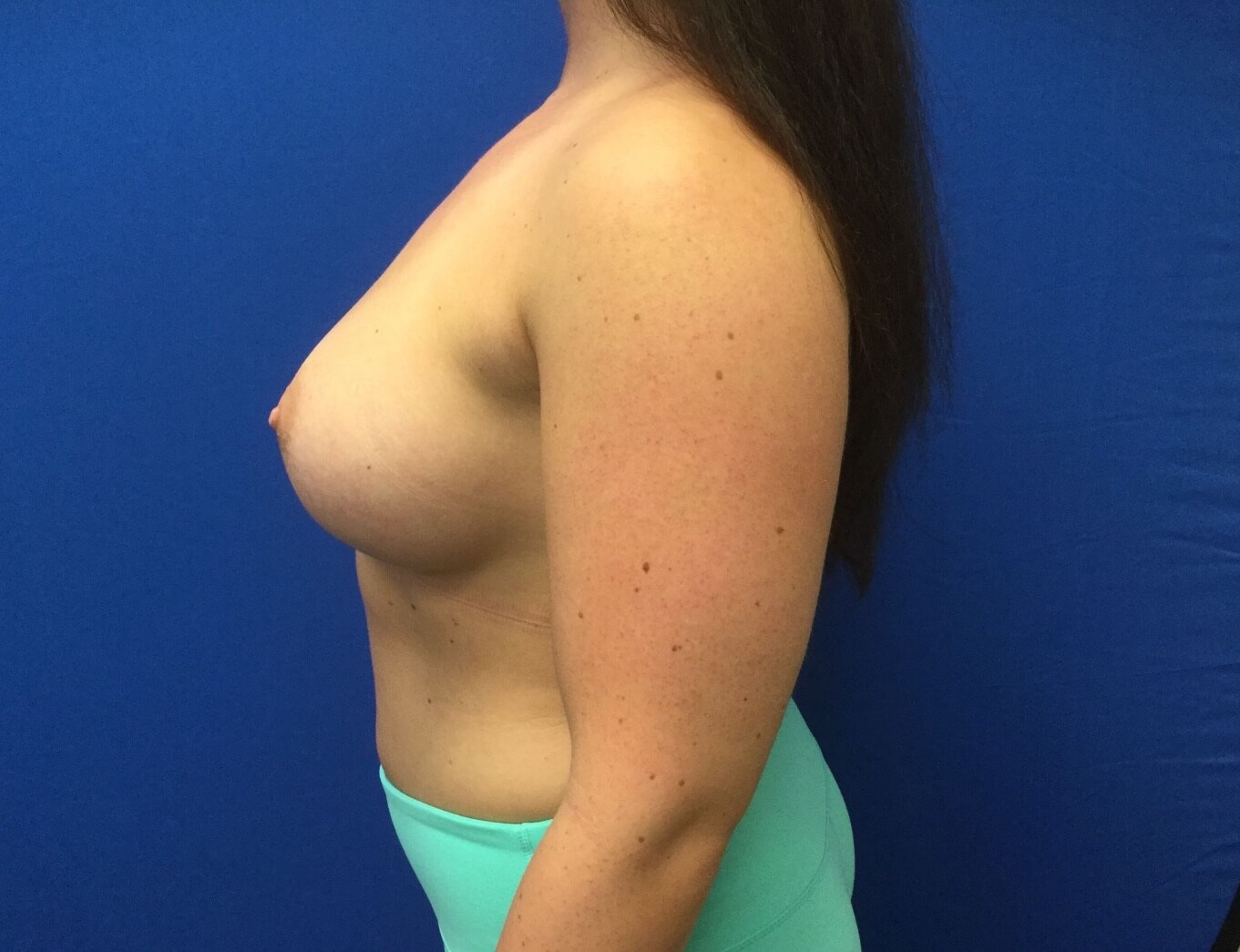 Breast Augmentation After(4 months)