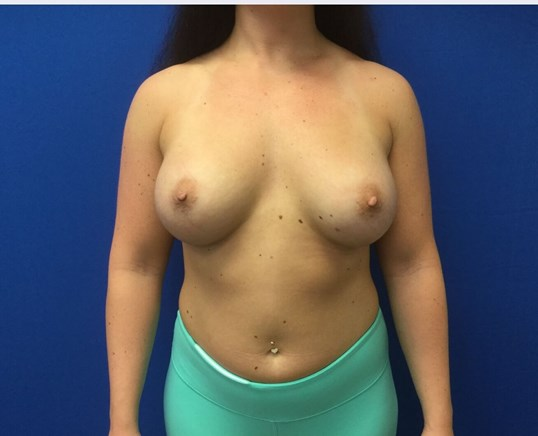 Breast Augmentaion After (4 months)