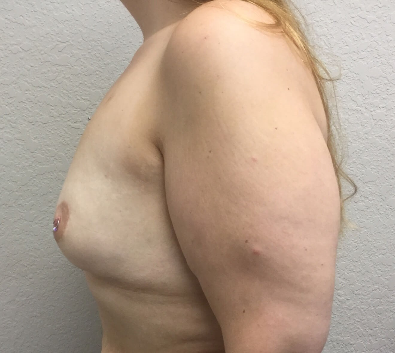 High profile breast aug Before