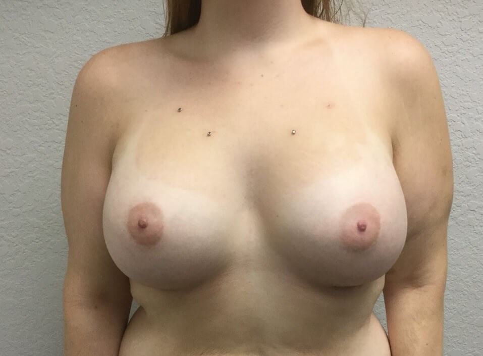 High profile breast aug After