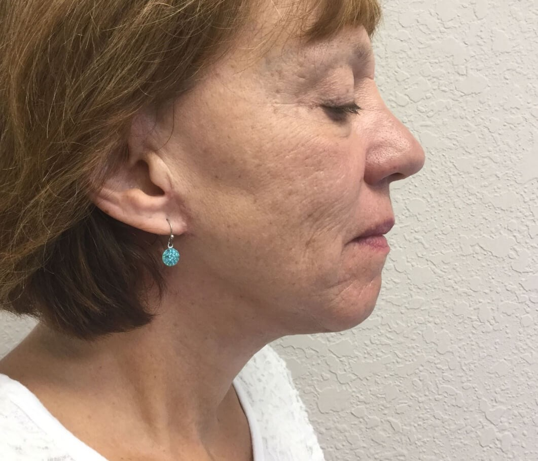 Necklift After( 1 month post op)