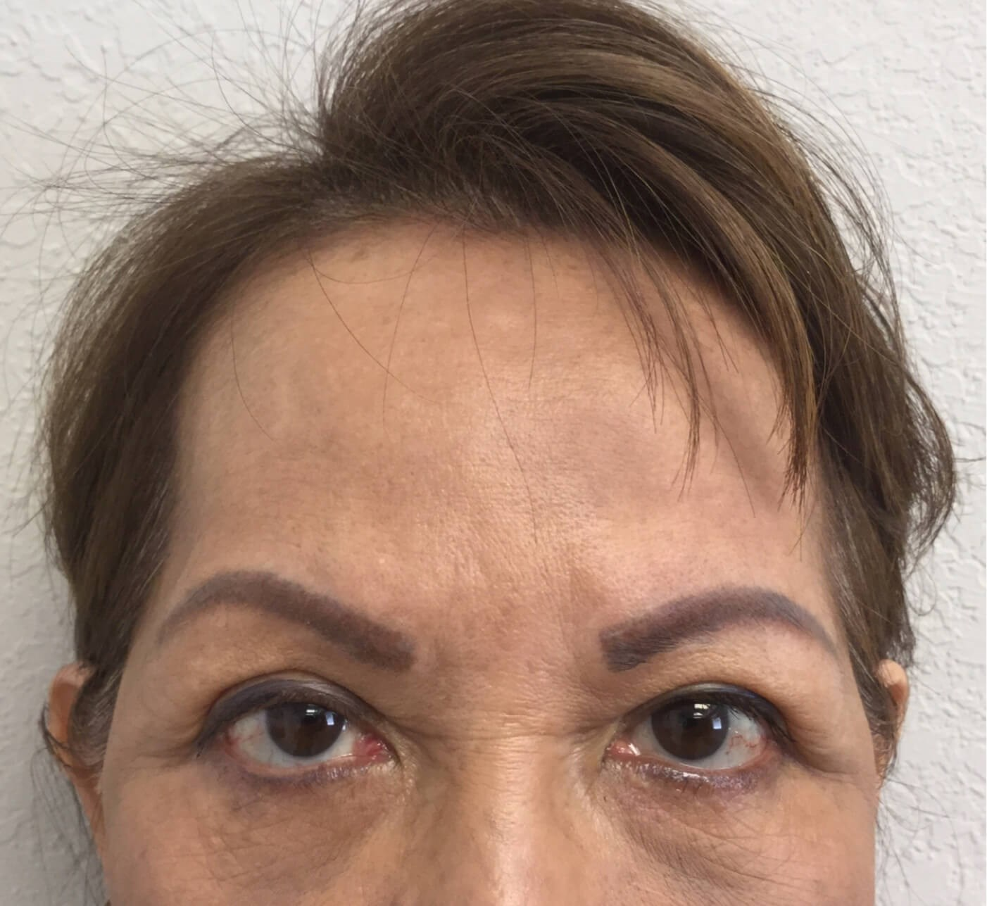 Brow lift Before