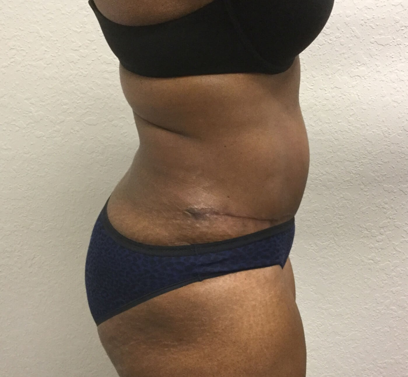 Tummy Tuck & Lipo of back After