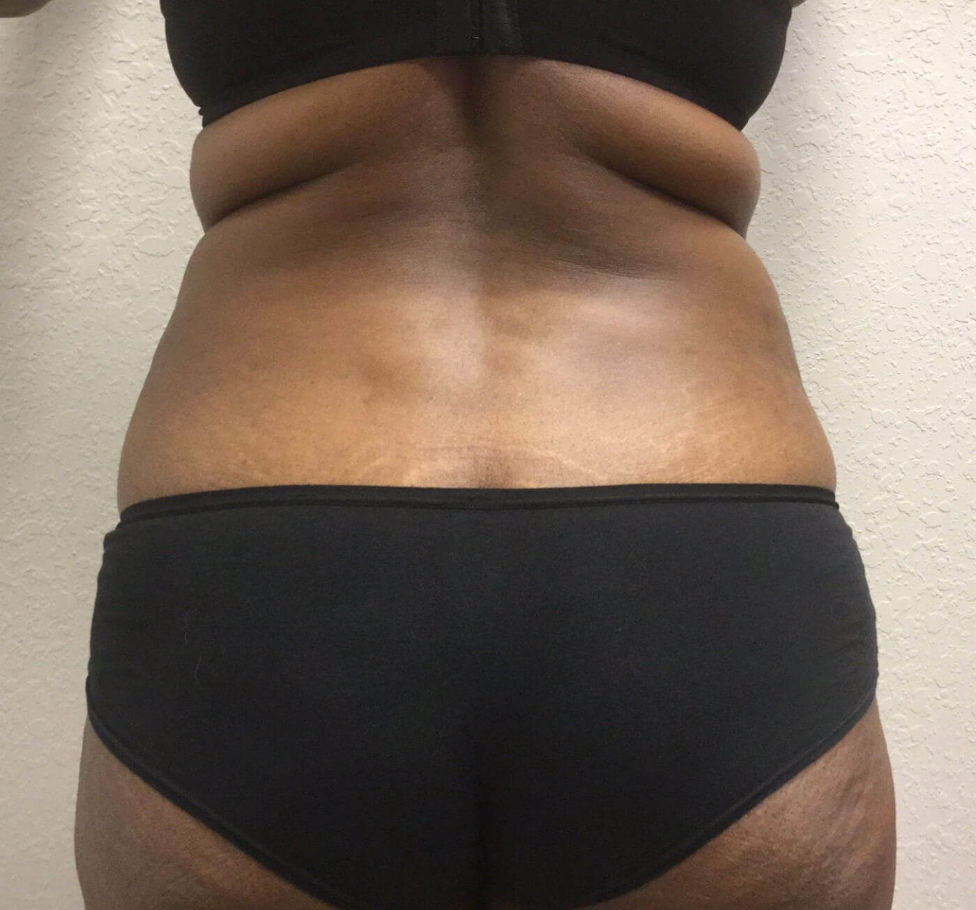 Tummy Tuck & Lipo of Back Before