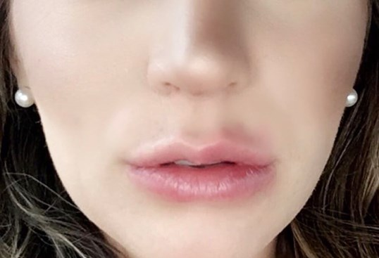 Pouty full lips with juvederm After