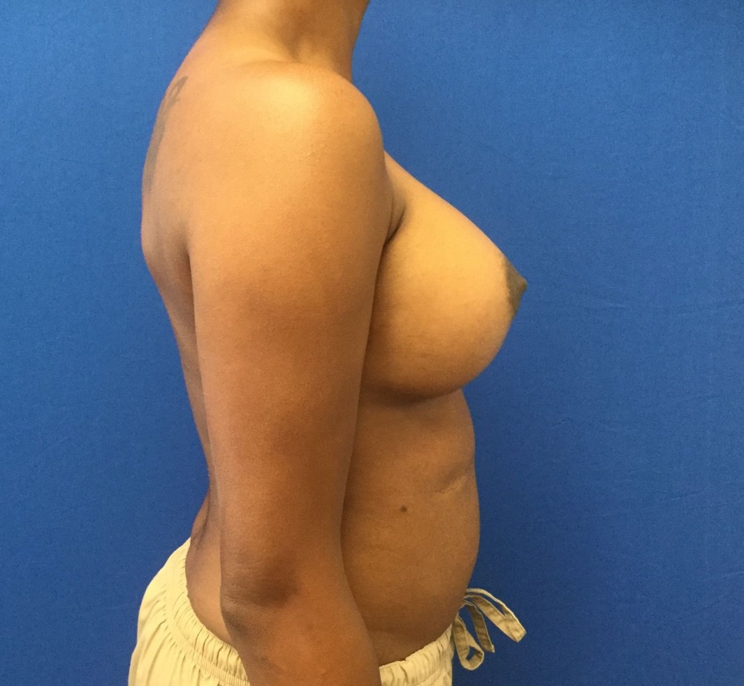 Breast Augentation After