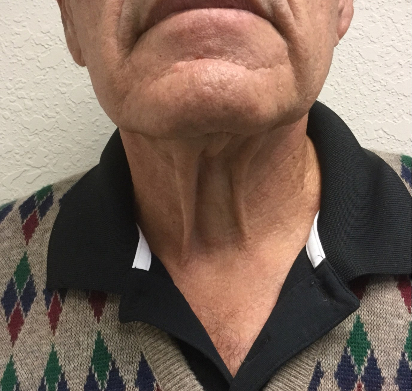 Male Neck Lift Before