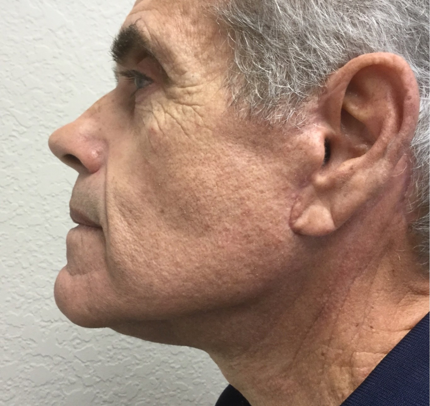 Male Neck Lift After