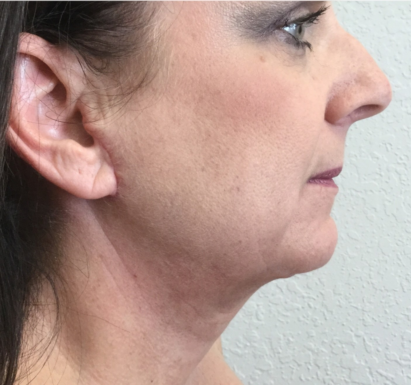 Neck Lift After