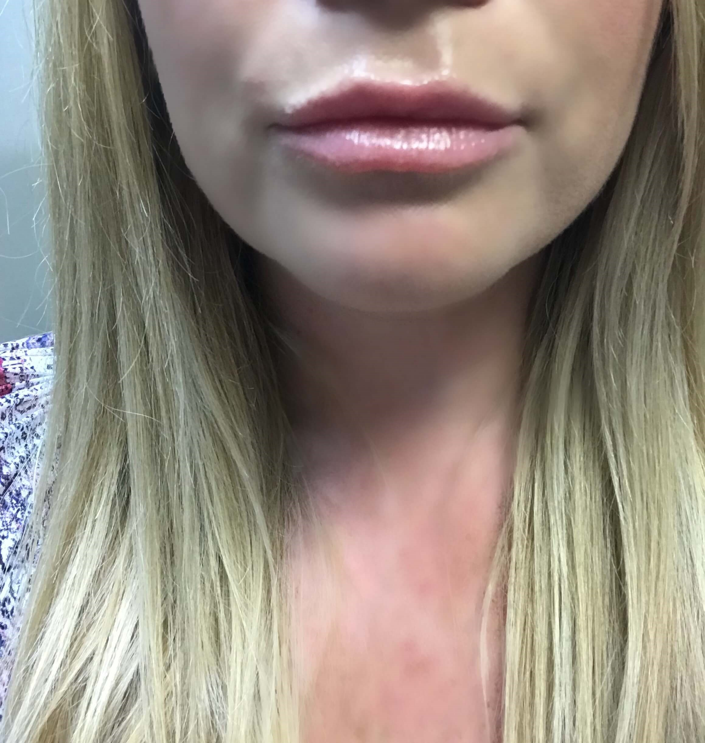 Lips Injections using Belotero Before