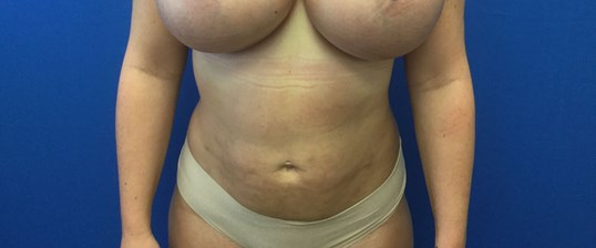 Mini Tummy Tuck After