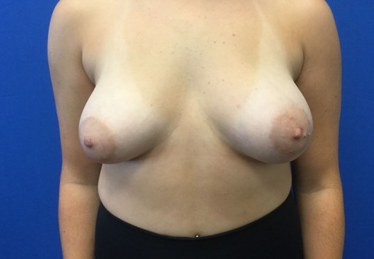 Breast Aug & Lift Before