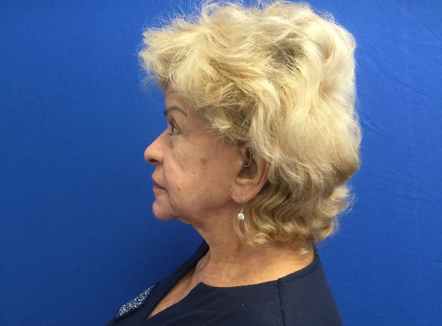 Facelift & Necklift Before