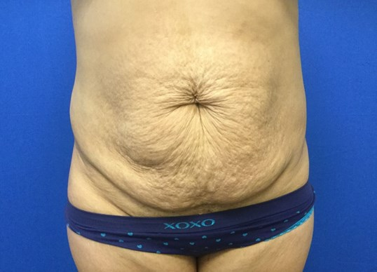 Liposuction & Tummy Tuck Before