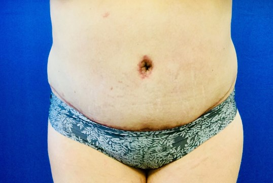 Liposuction & Tummy Tuck After