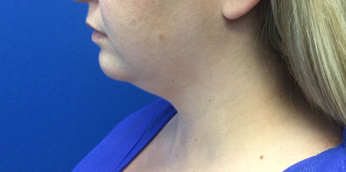 Liposuction of the chin Before