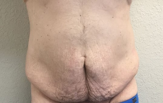 Male Tummy Tuck & Liposuction Before
