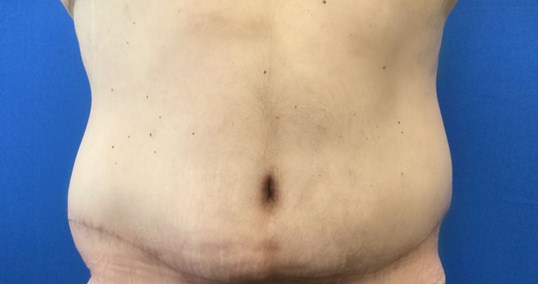Male Tummy Tuck & Liposuction After