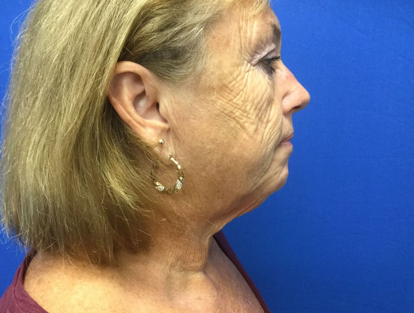 Facelift 1 week postop Before
