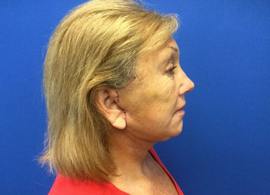 Facelift 1 week postop After
