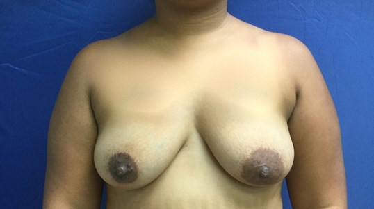 BreastAugmentation Before