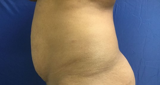 Tummy Tuck & Liposucton Before