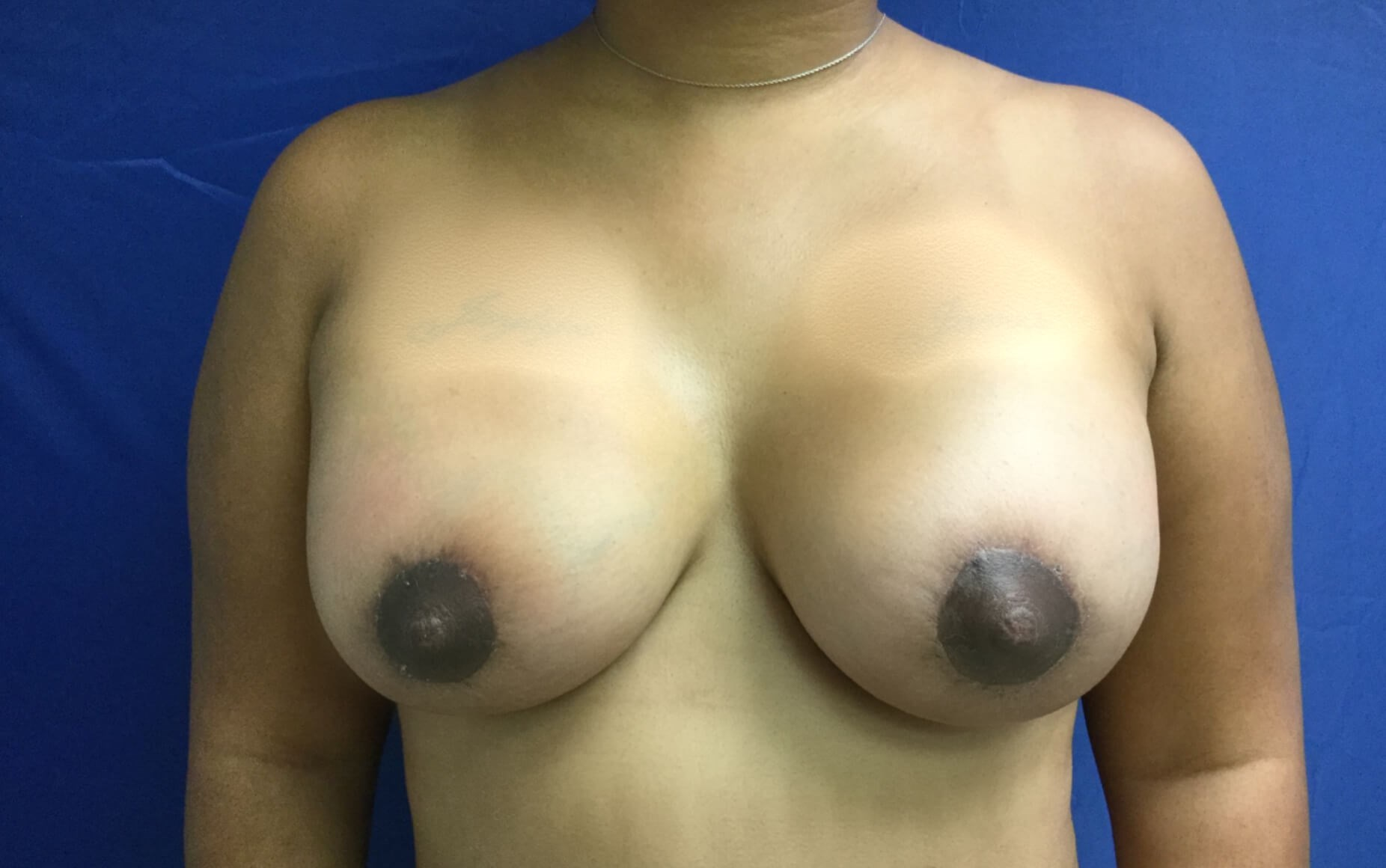BreastAugmentation After
