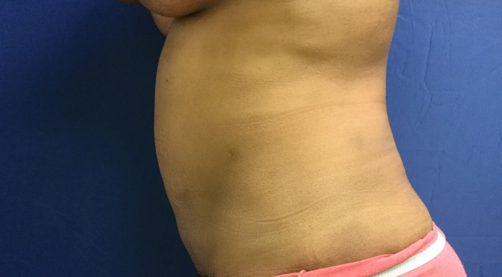 Tummy Tuck & Liposucton After