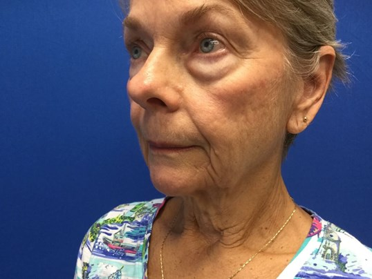 Facelift & Lower Bleph Before
