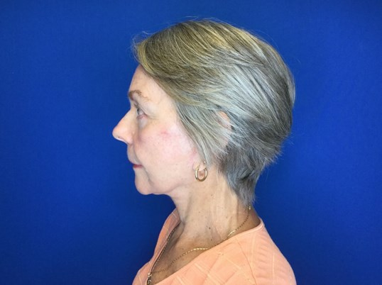 Facelift & Lower Bleph After