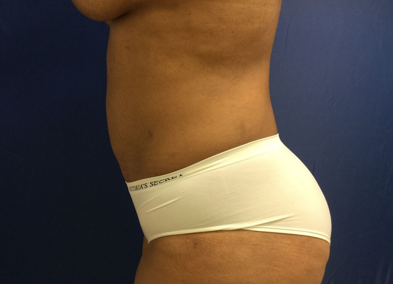 Mini Tummy Tuck & Liposuction After