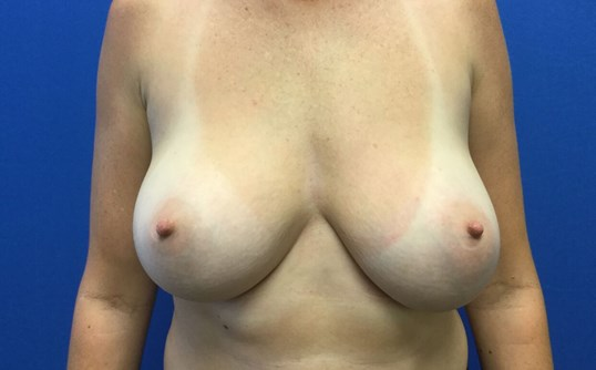Re-Augmentation with Lift Before