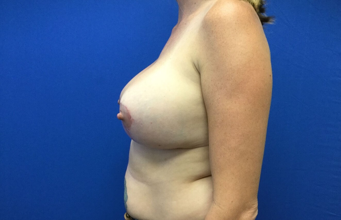 Re-Augmentation & Lift After
