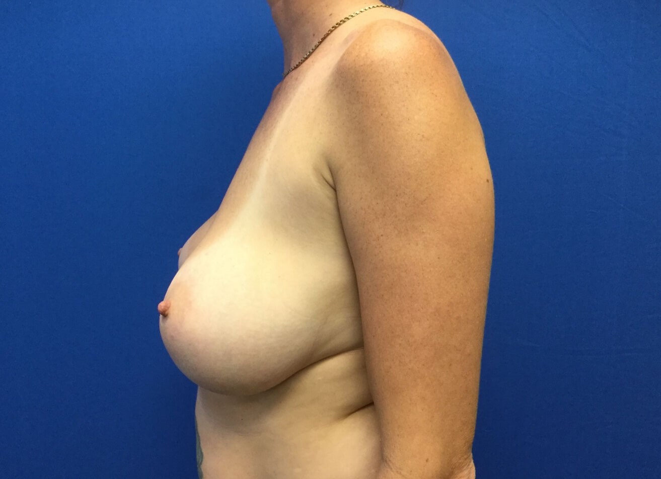 Re-Augmentation & Lift Before