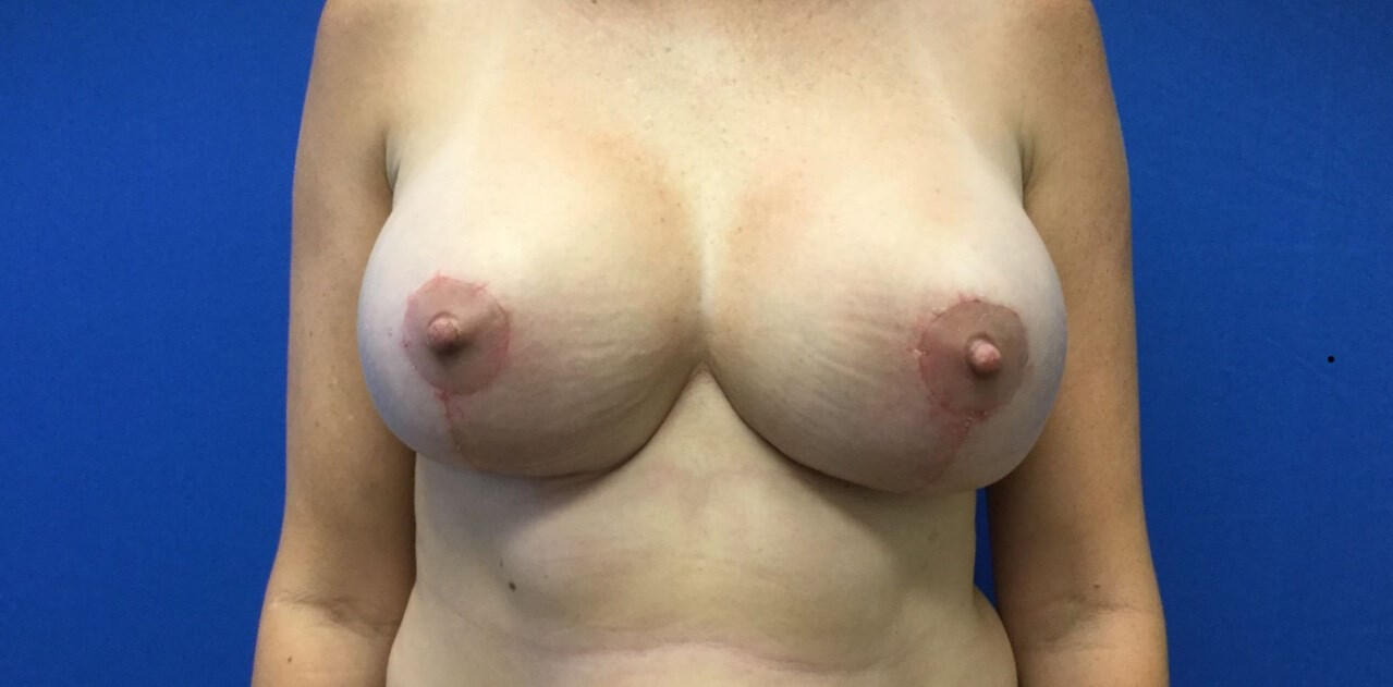 Re-Augmentation with Lift After